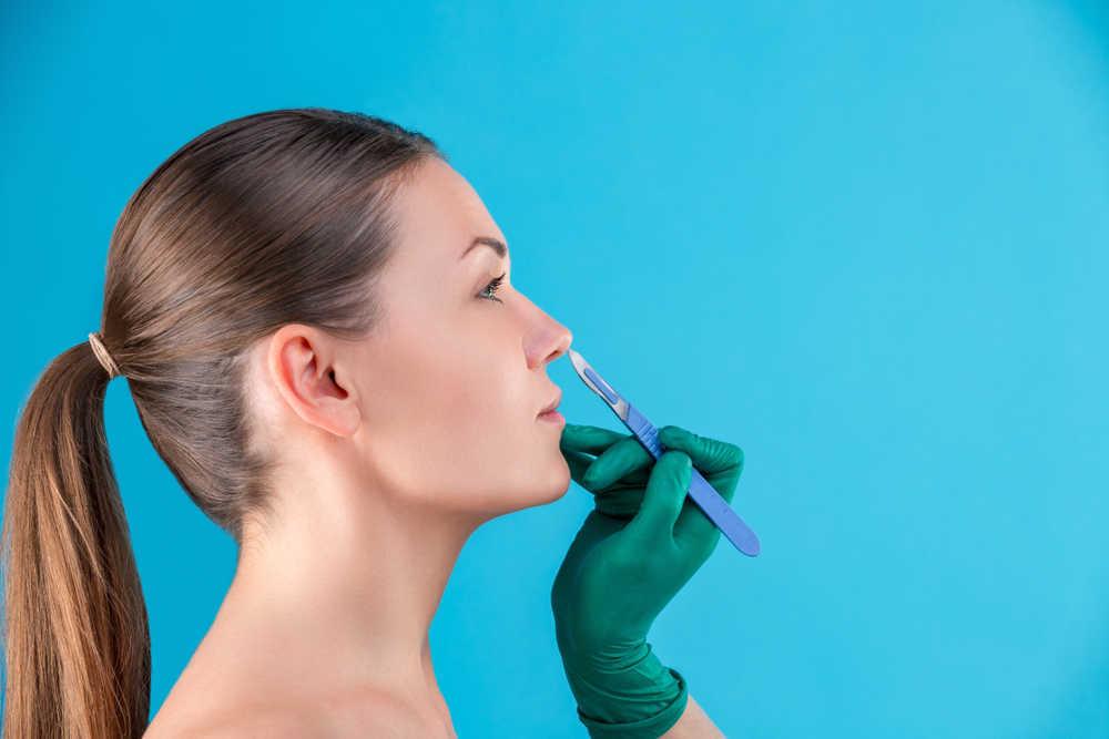 Rinoplastia: todo lo que hay que saber sobre la operación de la nariz