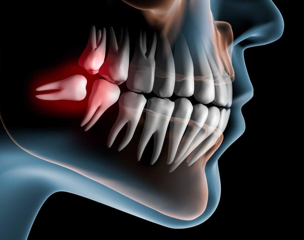 Los problemas más comunes que causan los terceros molares